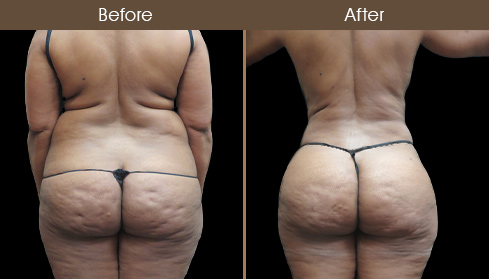 Before And After Lipo In NYC