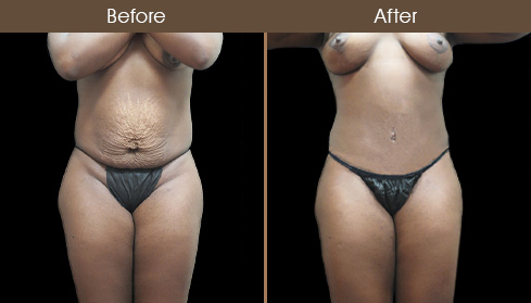Before & After Tummy Tuck In New York City