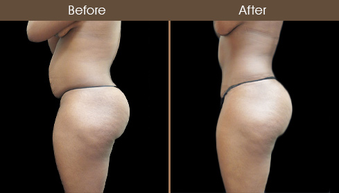 Before And After Tummy Tuck Surgery In New York City