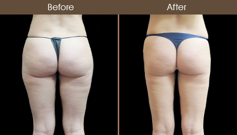 Before And After Lipo Surgery In NYC