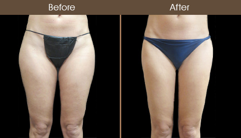 Before & After Lipo In NYC