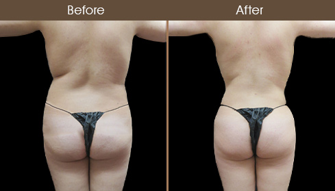 Lipo Before And After Back Image