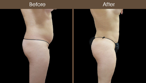 Lipo Before And After Right Side Image