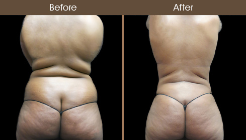 New York City Mommy Makeover Surgery Before & After