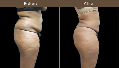New York City Mommy Makeover Surgery Before And After