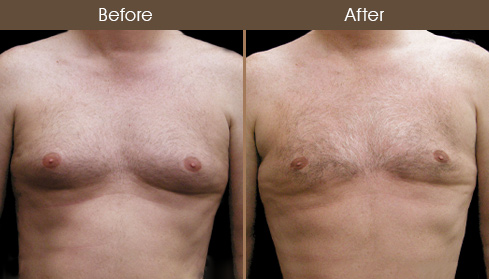Male Breast Reduction Before & After