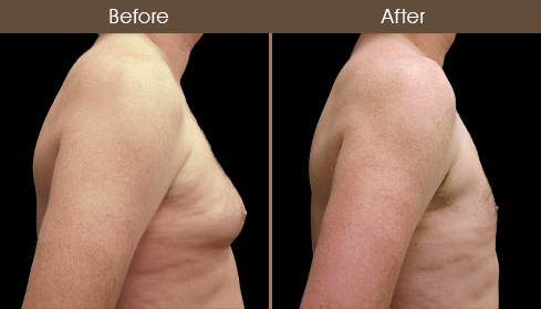 Before & After Male Breast Reduction