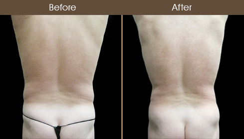 Before & After Male Liposuction