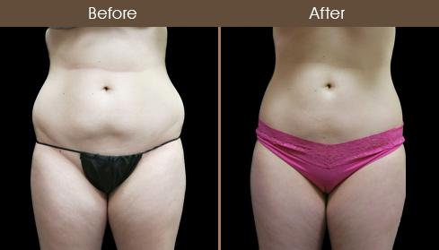 Before & After Lipo Surgery In NYC