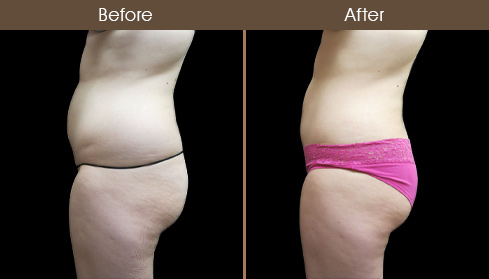 Before And After Liposuction In New York