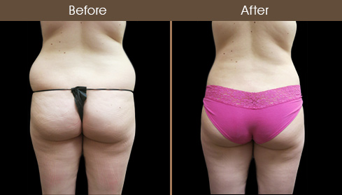 Before And After Liposuction Surgery In New York
