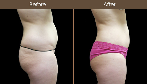 Before & After Liposuction In New York