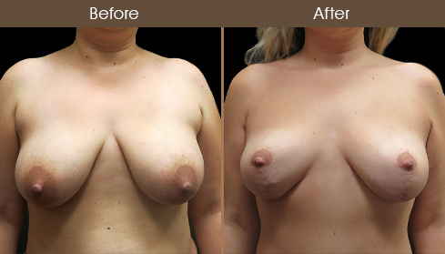 Before And After Breast Lift Front Image