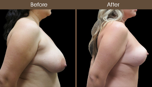 Before And After Breast Lift Right Side View