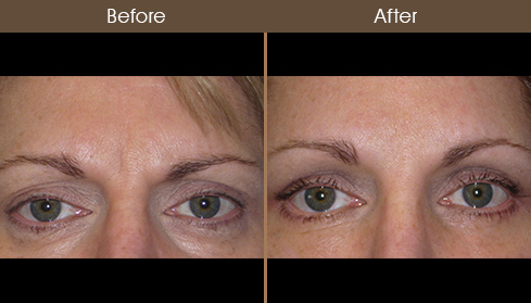 Browlift Results