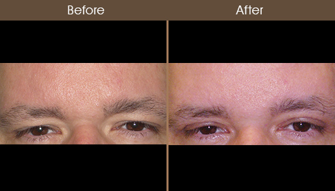 Before And After Browlift