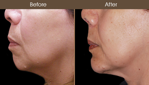 Before And After Chin Augmentation