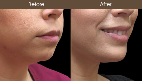 Chin Augmentation Surgery Before And After