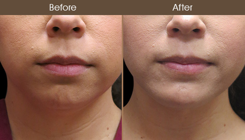 Chin Augmentation Surgery Before & After