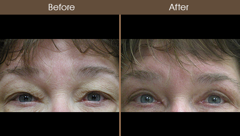 Eyelid Surgery Results