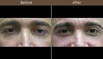 Blepharoplasty Results