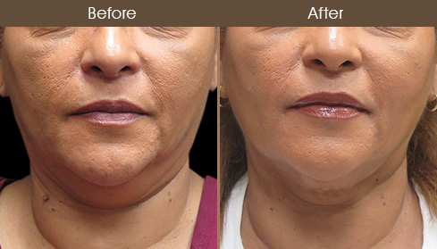 Scarless Facelift Surgery Before & After