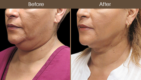 Before And After Scarless Facelift Surgery
