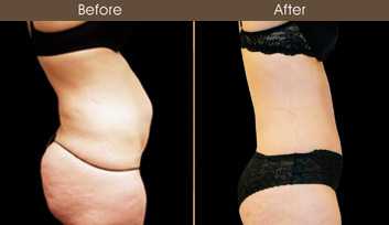 Before And After Abdominoplasty In New York City