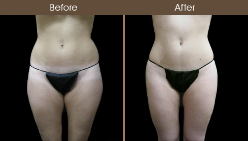 Before & After Liposuction Surgery In New York