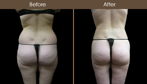 Before And After Lipo Surgery In New York