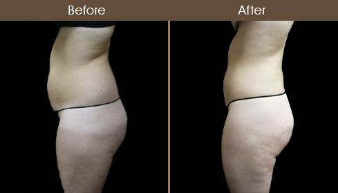 Before & After Lipo In New York