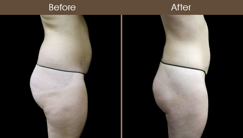 Before And After Lipo In New York