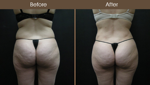 Lipo Surgery Before & After Back View