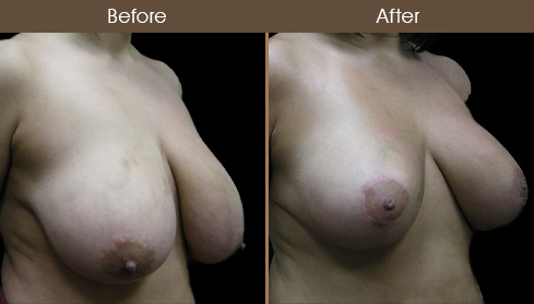 NYC Breast Reduction Surgery Before And After