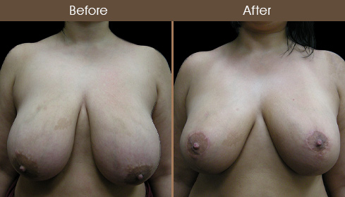 Before & After NYC Breast Reduction