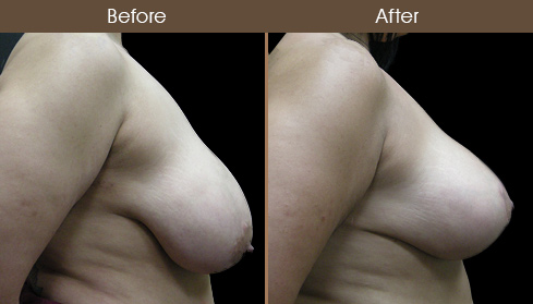 NYC Breast Reduction Surgery Before & After