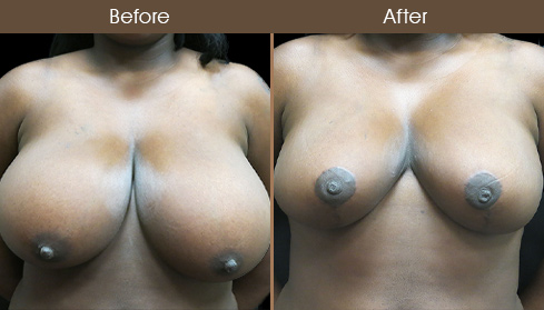 NYC Breast Reduction Surgery Results