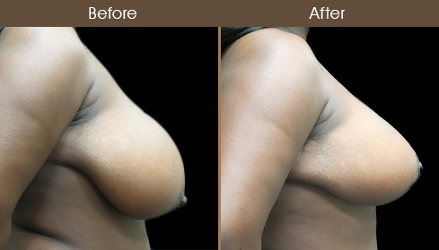 Before & After NYC Breast Reduction Surgery