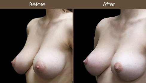 NYC Breast Lift Before & After