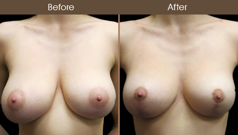 NYC Breast Lift Before And After