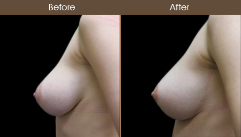 NYC Breast Lift Results