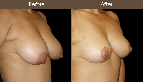 Before & After NYC Breast Lift