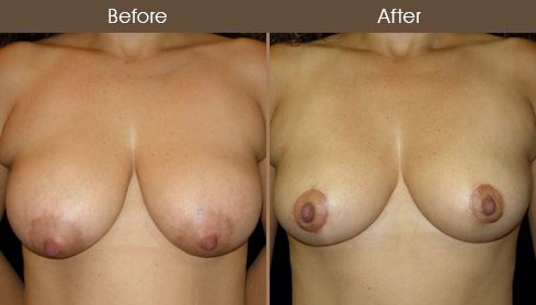 Before And After NYC Breast Lift