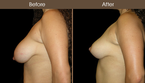 NYC Breast Lift Surgery Before And After