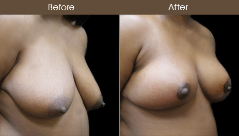 New York Breast Reduction Before & After