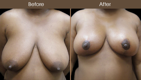 New York Breast Reduction Before And After