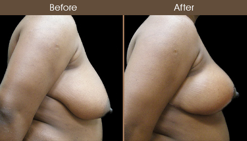 New York Breast Reduction Results