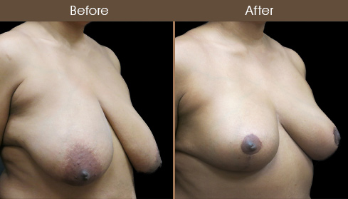 NYC Breast Lift Surgery Results