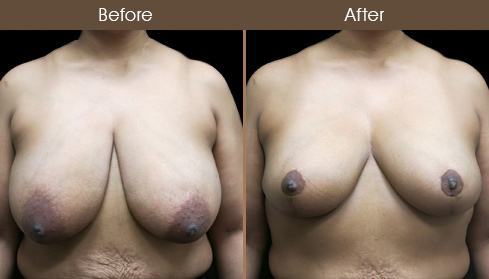 NYC Breast Lift Surgery Before & After