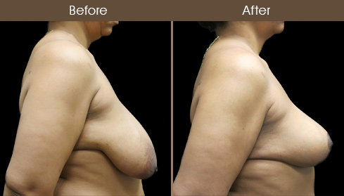 Before And After NYC Breast Lift Surgery